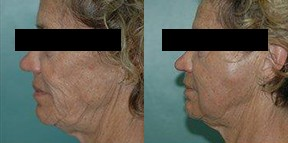 Patient 3b Micro Fat Grafting Before and After