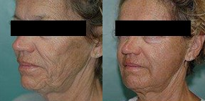 Patient 3c Micro Fat Grafting Before and After