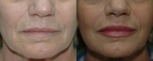 Patient 1c Micro Fat Grafting Before and After