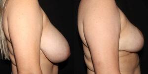 kaweski-san-diego-breast-reduction-_patient-12-1