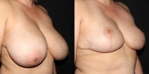 kaweski-san-diego-breast-reduction-_patient-12-2