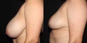 kaweski-san-diego-breast-reduction-_patient-12-3