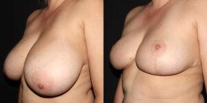 kaweski-san-diego-breast-reduction-_patient-12-4