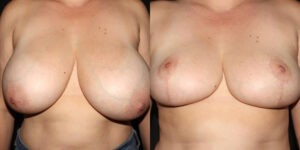 kaweski-san-diego-breast-reduction-_patient-12-5