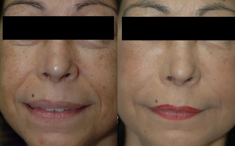Patient 2a Micro Fat Grafting Before and After