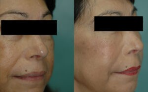 Patient 2b Micro Fat Grafting Before and After
