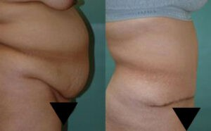 Patient 7c Tummy Tuck Before and After