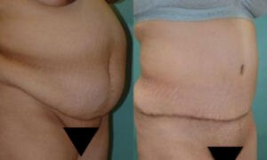 Patient 7b Tummy Tuck Before and After