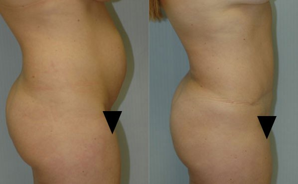 Patient 1 Tummy Tuck Before and After
