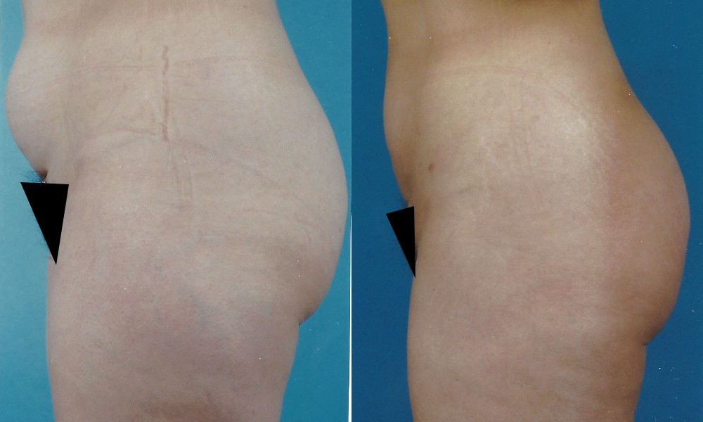 Patient 4 Liposuction Before and After