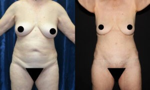 Patient 7a Liposuction Before and After