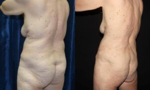 Patient 7d Liposuction Before and After