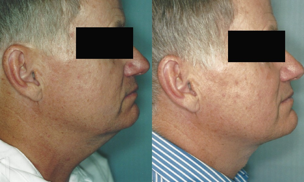 Patient 2a Neck Lift Before and After