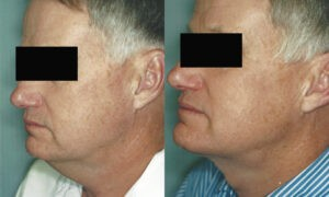 Patient 2b Neck Lift Before and After