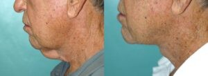 Patient 1b Neck Lift Before and After