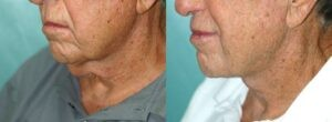 Patient 1c Neck Lift Before and After