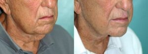 Patient 1d Neck Lift Before and After