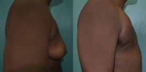 Patient 1e Transgender Plastic Surgery Before and After