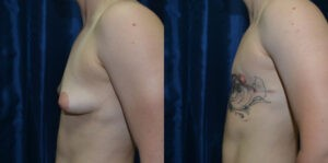 Patient 5b Transgender Plastic Surgery Before and After