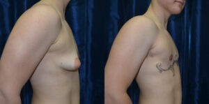 Patient 5c Transgender Plastic Surgery Before and After