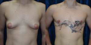Patient 5e Transgender Plastic Surgery Before and After