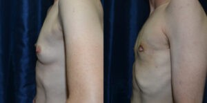 Patient 6b Transgender Plastic Surgery Before and After