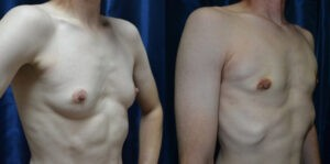 Patient 6c Transgender Plastic Surgery Before and After