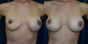 Patient 2b Breast Revision Before and After