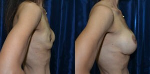 Patient 2c Breast Revision Before and After