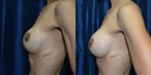 Patient 2e Breast Revision Before and After