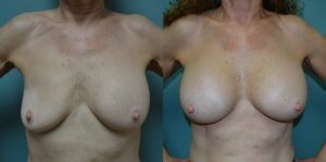 Patient 1a Breast Revision Before and After