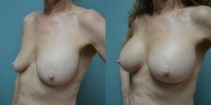 Patient 1b Breast Revision Before and After