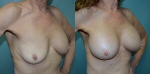 Patient 1d Breast Revision Before and After