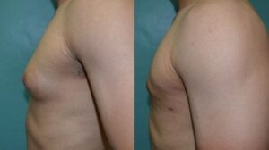 Patient 1d Gynecomastia Before and After
