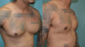 Patient 2e Gynecomastia Before and After
