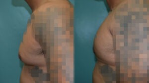 Patient 2c Gynecomastia Before and After