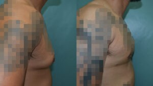 Patient 2b Gynecomastia Before and After