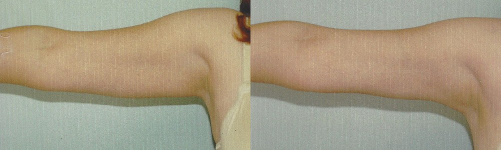 Patient 2a Arm Lift Before and After