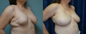 Patient 1b Breast Reconstruction