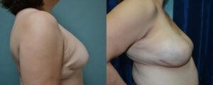 Patient 1c Breast Reconstruction