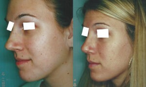 Patient 3b Rhinoplasty Before and After