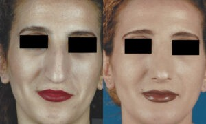 Patient 1b Rhinoplasty Before and After