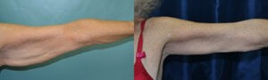 Patient 4a Arm Lift Before and After