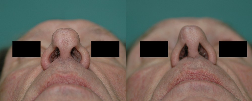 Patient 5 Rhinoplasty Before and After