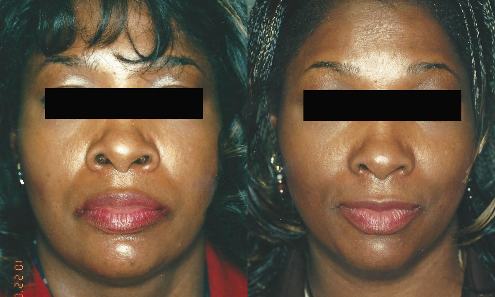 Patient 4 Rhinoplasty Before and After