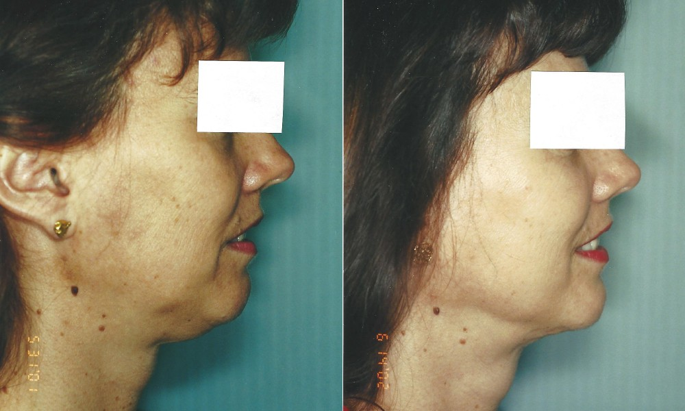 Patient 1 Liposuction Before and After
