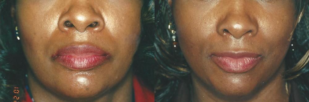 Patient 2 Lip Reduction