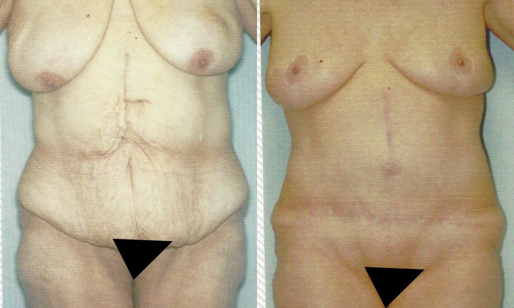 Patient 1a Body Lift Before and After
