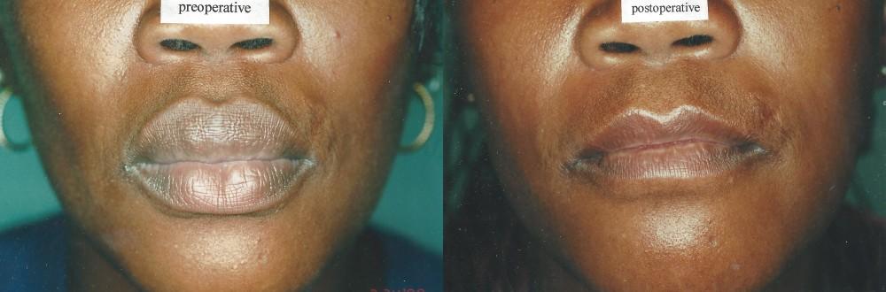 Patient 1 Lip Reduction