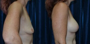 Patient 17d Breast Augmentation Before and After